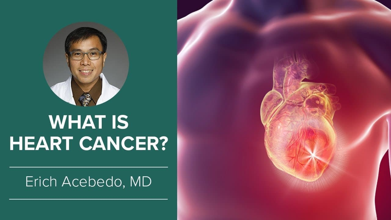 What is heart cancer ouy 1vus82q - cancer center for healing | irvine, ca